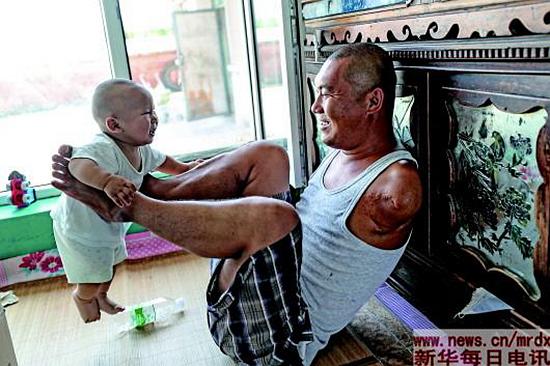 """无臂""""最强老爸"""":阳光乐观是这样炼成的"""